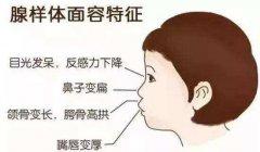重庆耳鼻喉医院哪家好_腺样体肥大的危害