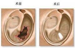 重庆仁品耳鼻喉医院_鼓膜穿孔是怎样引起的?