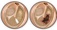重庆耳鼻喉医院_鼓膜穿孔有哪些症状?