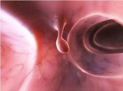 声带息肉的病因有哪些?-重庆仁品耳鼻喉医院