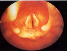 急性喉炎的治疗方法有哪些