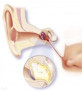 儿童急性中耳炎要注意哪些问题