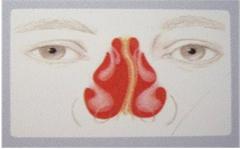 打鼾、频繁鼻出血,竟然都查出鼻中隔偏曲!